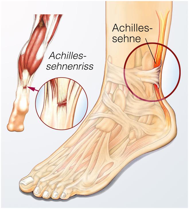 Die Achillessehne ist die stärkste Sehne des Menschen.