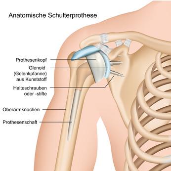 Anatomische Schulterprothese, Illustration mit Beschreibung