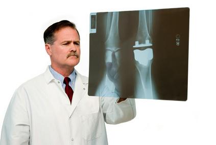 Selbsttest Arthrose Röntgen
