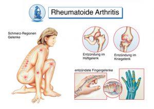 Arthritis und Arthrose Omega-3
