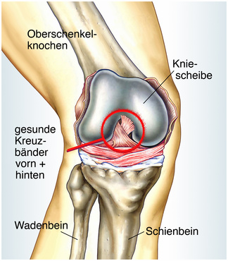 Knie Operationen Arthrose Arthroskopie