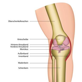 Knieoperationen, beispielsweise bei einem Meniskusschaden oder eine Bakerzyste, zählen mittlerweile zu den häufigsten chirurgischen Eingriffen.