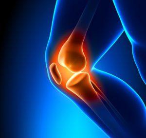 Kniegelenksarthrose MSM