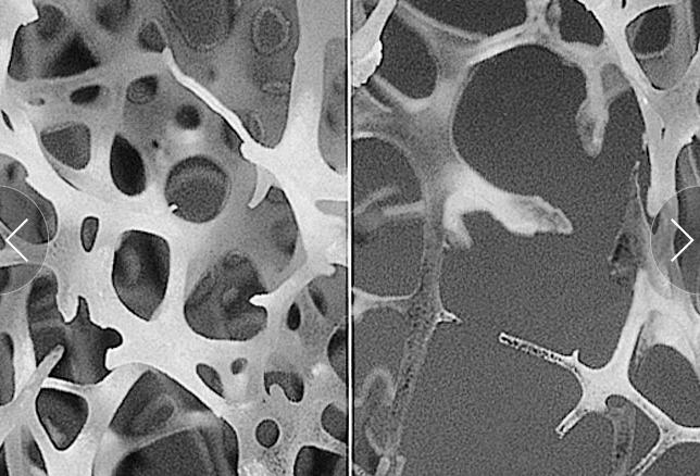 Im Vergleich mit einem normaler Knochen (links), ist ein osteoporotischer Knochen (rechts) sehr fragil. Das Risiko eines Knochenbruches ist so, selbst bei minimalem Trauma, erhöht.